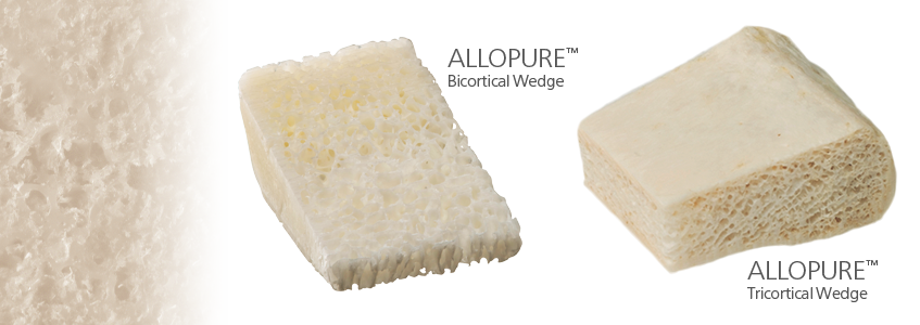 ALLOPURE™ Allograft Bone Wedges