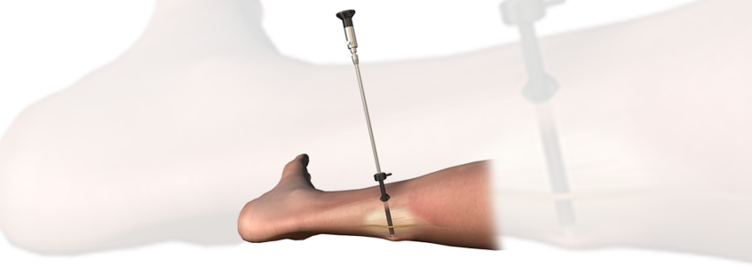 AM™ SURGICAL Soft Tissue Release System
