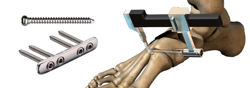 CHARLOTTE™ Lisfranc Reconstruction System
