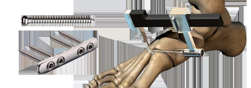 CHARLOTTE™ Lisfranc Reconstruction System