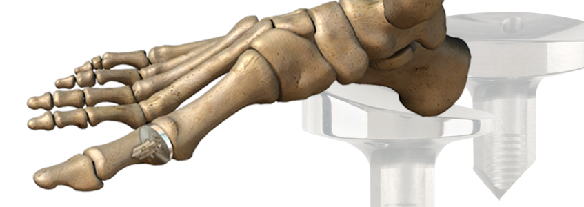 LPT™ Great Toe Implant