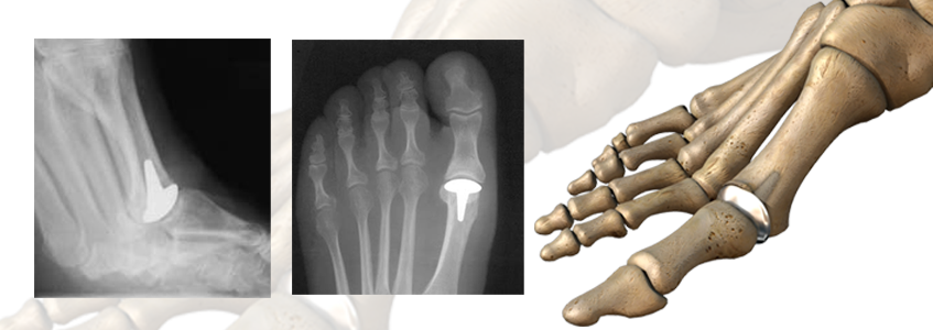 MDI™ Metatarsal Decompression Implant