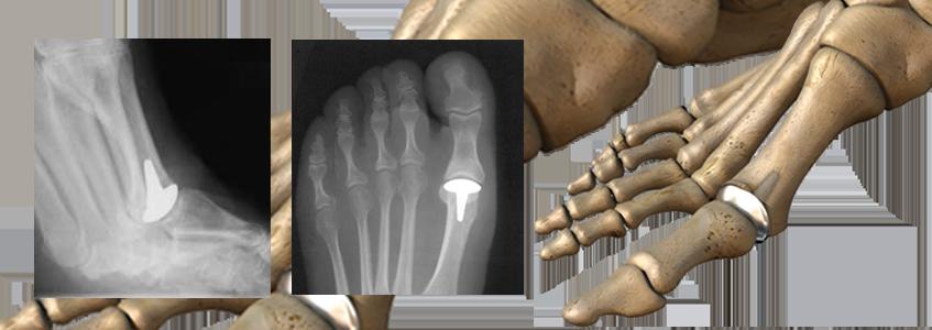 MDI™ Metatarsal Decompression Implant