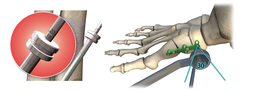 ORTHOLOC™ Medial Column Fusion Plate