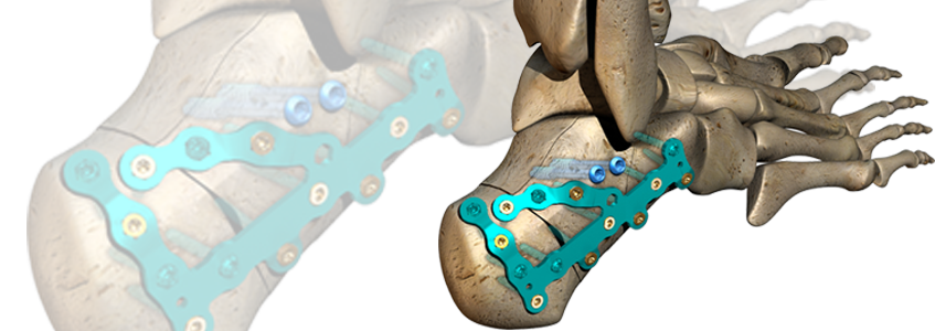 ORTHOLOC™ Polyaxial Calcaneal Fracture System