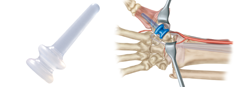 TIE-IN™ Trapezium Implant