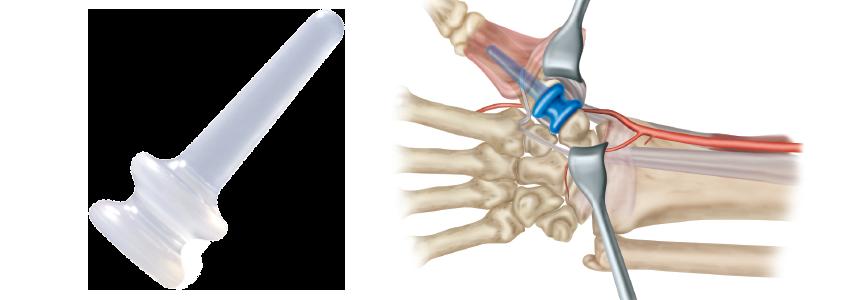 TIE-IN™ Trapezium Implant