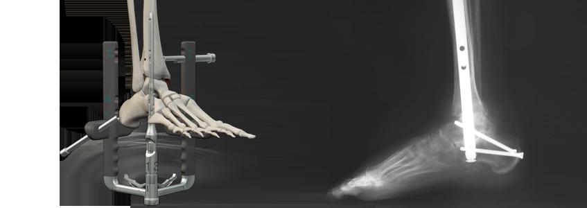 Valor Hindfoot Fusion Nail System Wright Medical Group