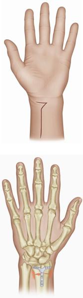 hand-volar-scar