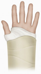 hand-with-cast