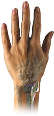 micronail-wrist-break