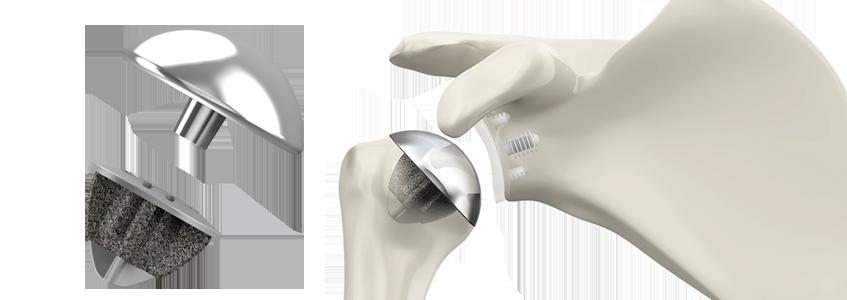 SIMPLICITI™ Shoulder System