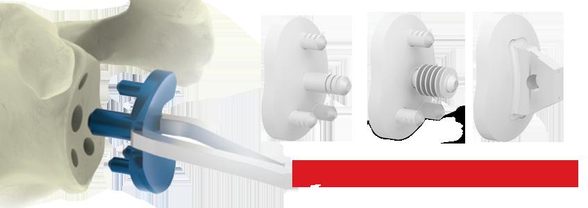 AEQUALIS™ PERFORM™ Shoulder System