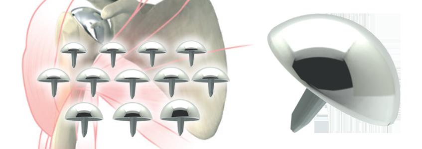 AEQUALIS™ RESURFACING HEAD Humeral Resurfacing