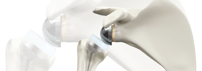 BIO-RSA™ Bony Increased Offset – Reversed Shoulder Arthroplasty