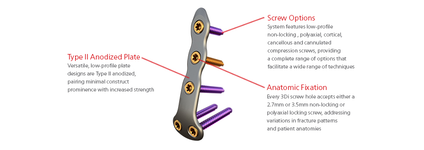 ORTHOLOC™ 2 ANKLE FRACTURE LOW-PROFILE SYSTEM   Wright